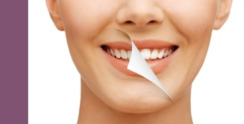 Do You Want to Enhance Your Natural Smile? Dental Rooms Offers Tips on Cosmetic Dental Treatments