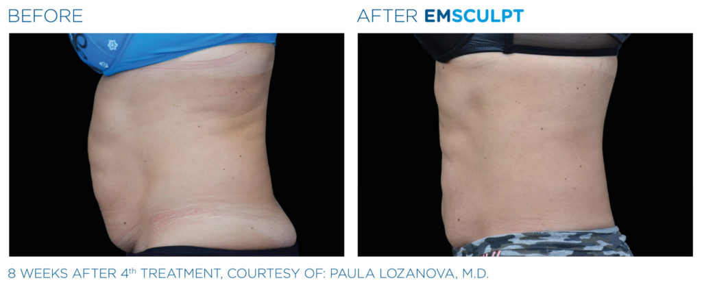 emsculpt-before-and-after